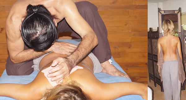 scoliosis massage